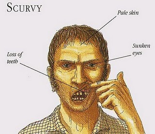 scurvy_Full